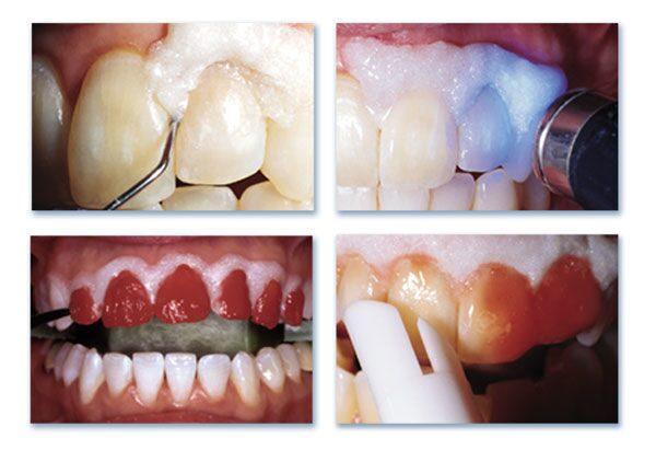 Отбеливающие пасты для зубов вред